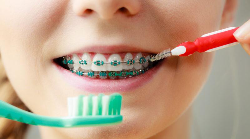 uslugi_ortodontyczne